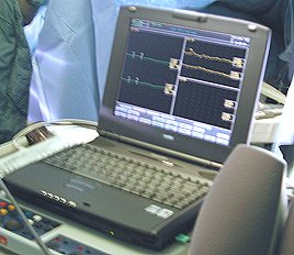 The intra-operative monitoring device used at the CCND, Winnipeg.