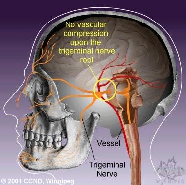 trigeminal nerve distribution